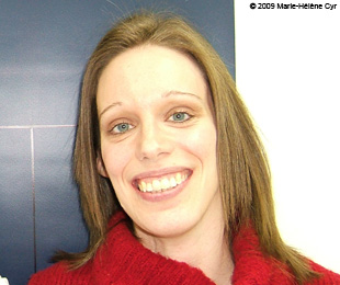 Marie-Hélène Cyr - After orthodontic treatments and orthognathic surgeries (February 10, 2009)