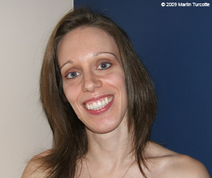 Marie-Hélène Cyr - After orthodontic treatments and orthognathic surgeries (November 28, 2009)
