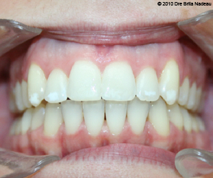 Marie-Hélène Cyr - Central intraoral view - After orthodontic treatments and orthognathic surgeries (January 29, 2010)