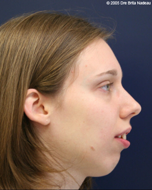 Marie-Hélène Cyr - Profile - Before orthodontic treatments and orthognathic surgeries (November 24, 2005)