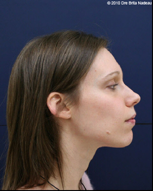 Marie-Hélène Cyr - Profile - After orthodontic treatments and orthognathic surgeries (January 29, 2010)