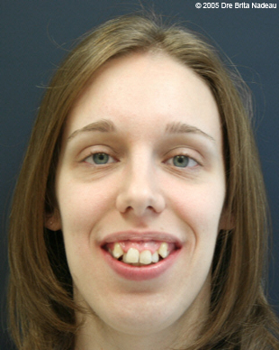 Marie-Hélène Cyr - Smile - Before orthodontic treatments and orthognathic surgeries (November 24, 2005)