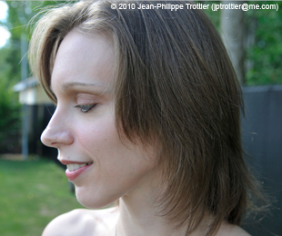 Marie-Hélène Cyr - After orthodontic treatments and orthognathic surgeries (July 29, 2010)